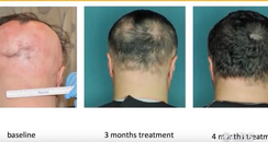 Hair Loss Drug Treatment